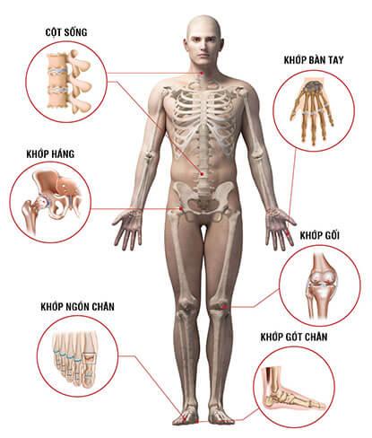 dấu hiệu của người bị mắc bệnh xương khớp